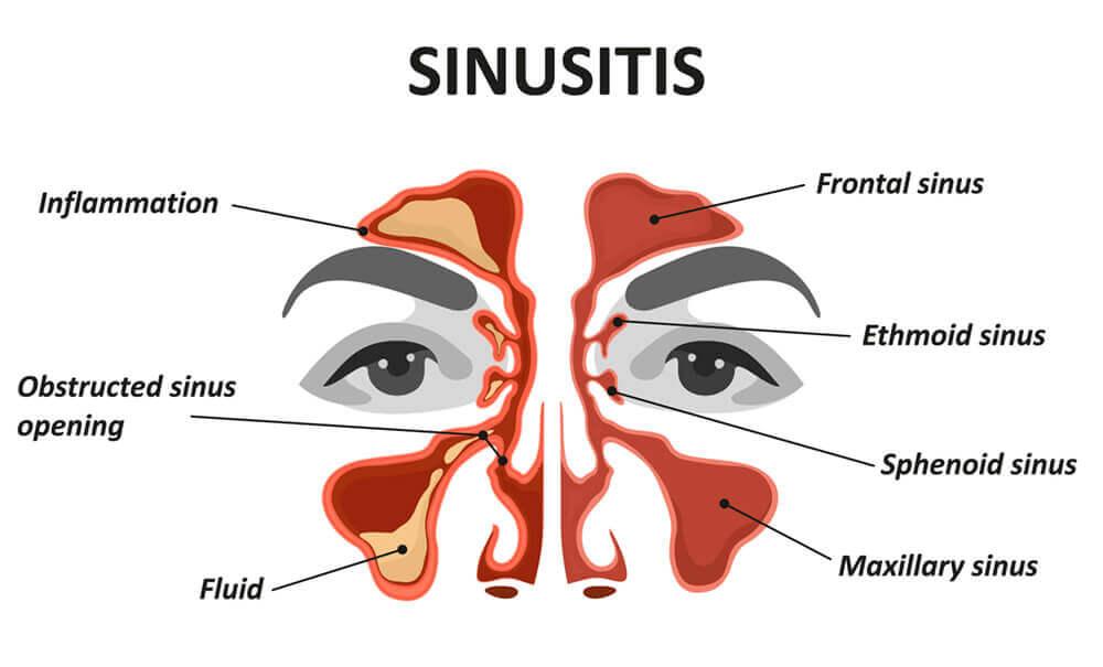 Sinusitis Diagram