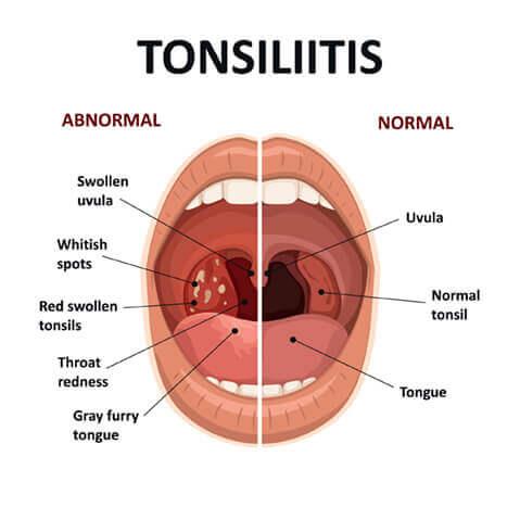 Tonsilitis diagram